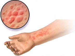 درمان جوش حساسیت دارویی